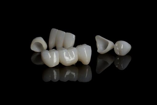dental-bridge-2