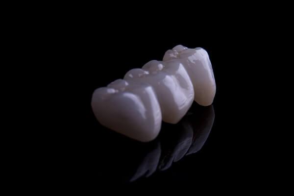 hp-porcelain-crowns