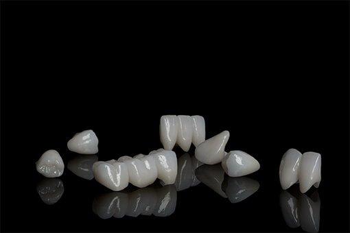 vs-porcelain-crowns