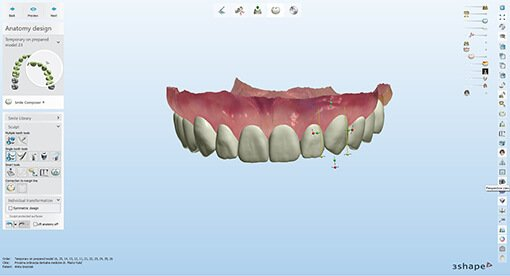 what-is-digital-smile-design