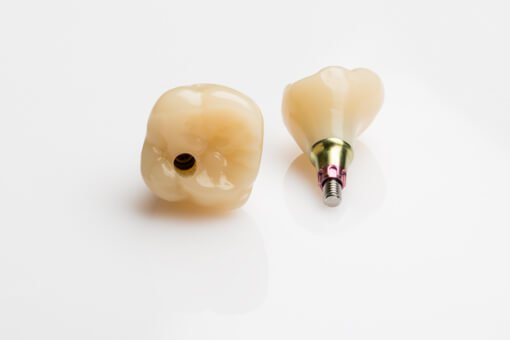 why-zirconia-crowns-are-better-for-dental-implants-than-titanium-crowns