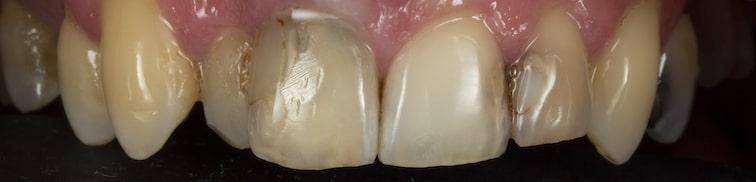 Davor zubi prije-min