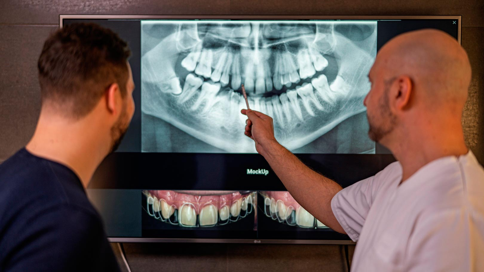 doktor pokazuje snimku ortopana - zubni rentgen
