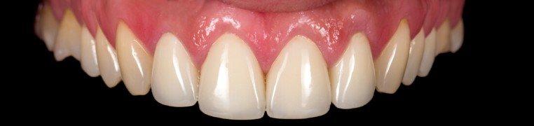 ana-zubi-prije
