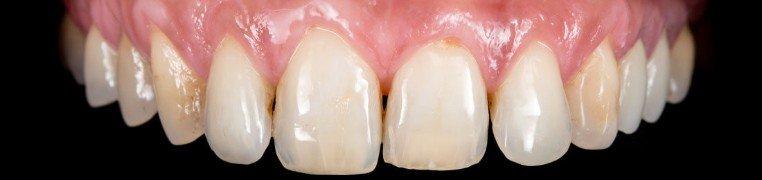 andreja-zubi-prije