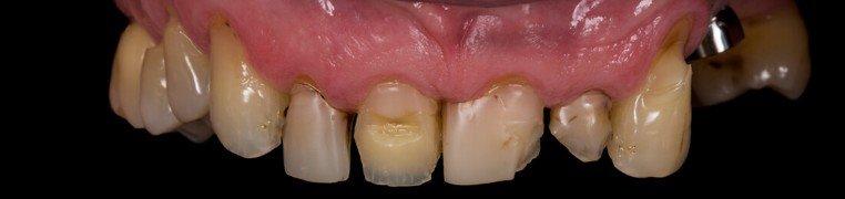 branko-zubi-prije