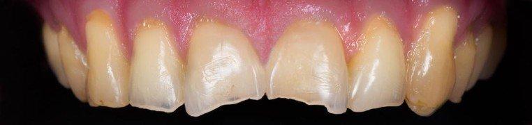 daniel-zubi-prije
