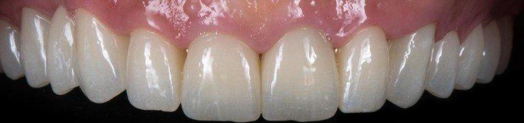 danijela-zubi-poslije