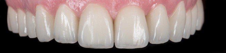 dijana-zubi-poslije