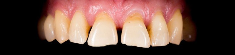 frank-zubi-prije.jpg