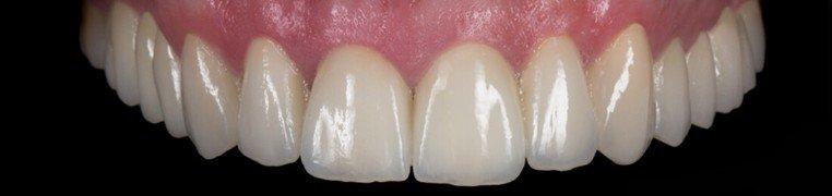 hrvoje-zubi-poslije