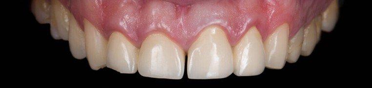 hrvoje-zubi-prije