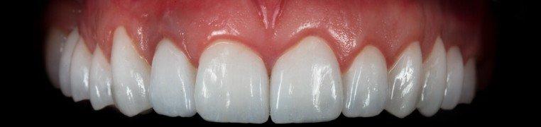 ivan-zubi-poslije