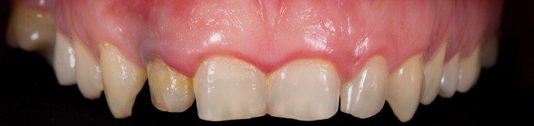 ivan-zubi-prije