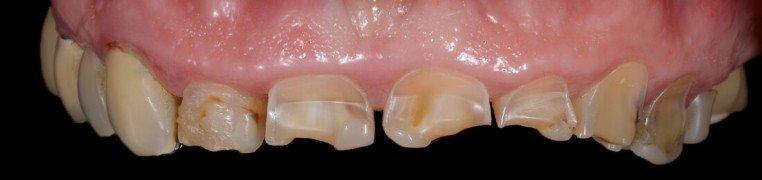 jadranka-zubi-prije