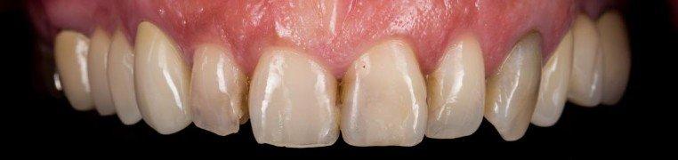 jasmina-zubi-prije