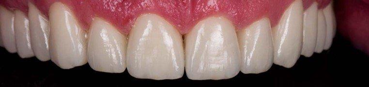 jimmy-zubi-poslije.jpg
