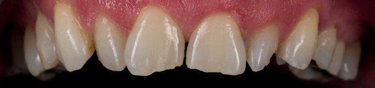 jimmy-zubi-prije.jpg