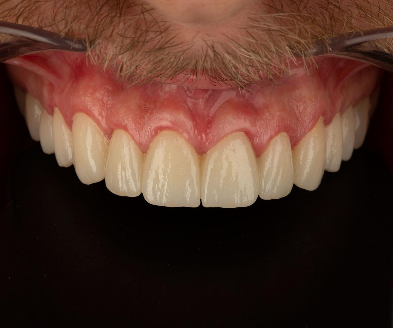 izgled ugrađenih zubnih krunica