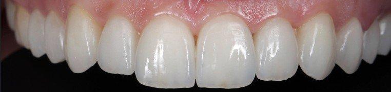 nikolina-zubi-poslije