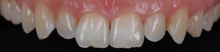 nikolina-zubi-prije