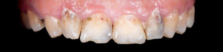 rukiye-zubi-prije