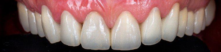 vedrana-zubi-poslije