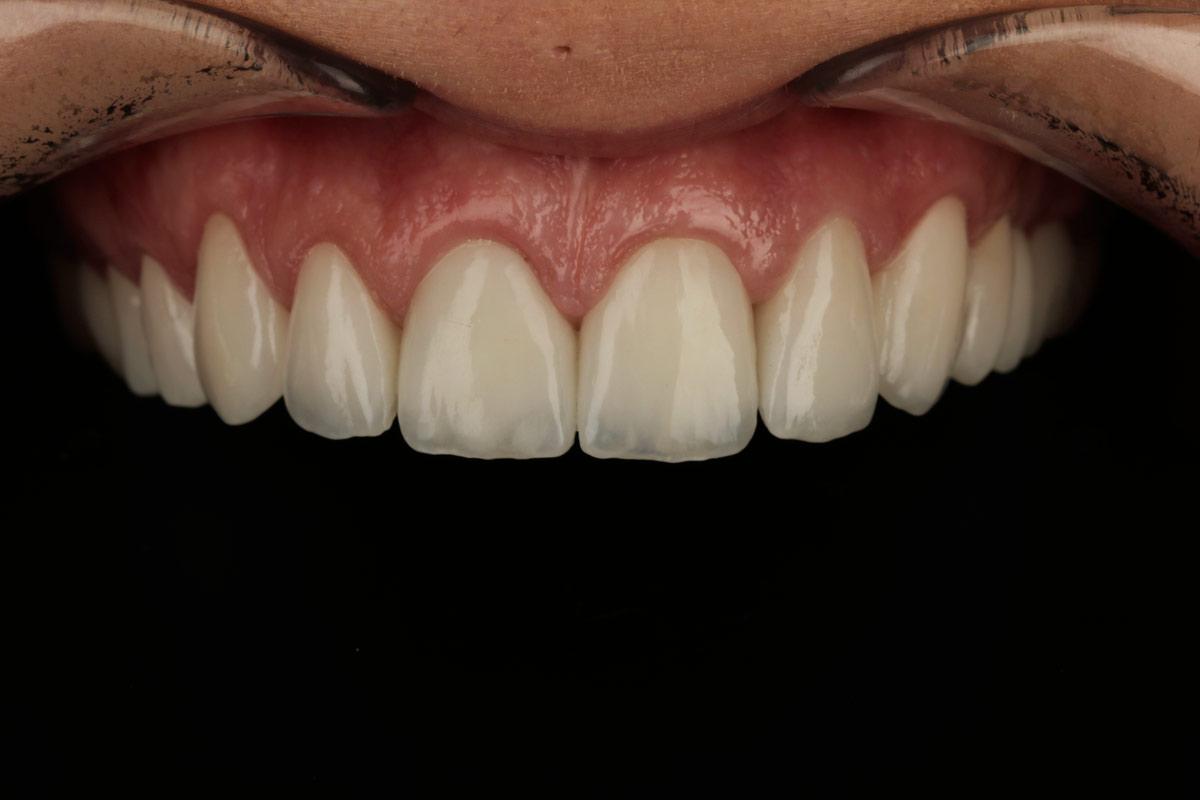 zubne ljuskice - ugradnja