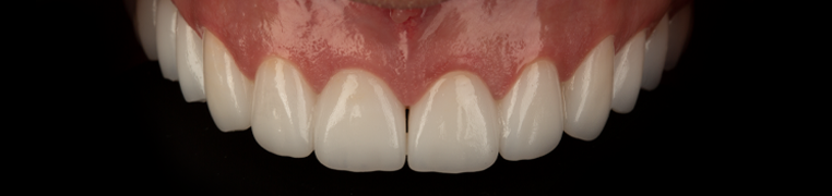 Teeth_poslije