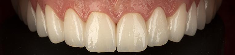 Teeth after novo novo