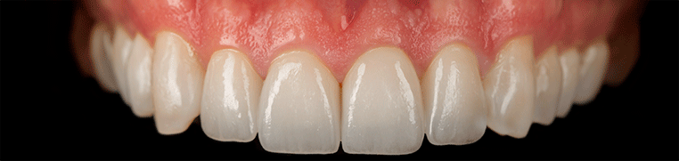 zubiposlije