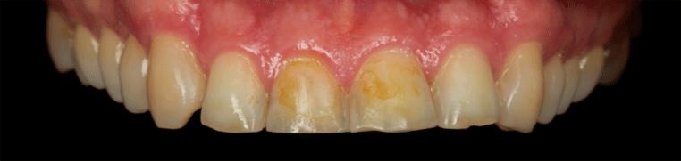 zubiprije2
